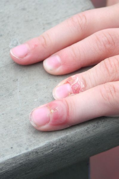 Chicken Pox Blisters On Fingers
