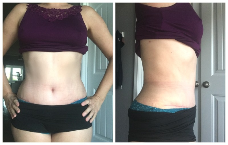Tummy Tuck Before and After Pictures and Experience -